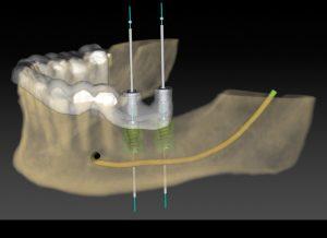 implante dentário em Uberlândia/MG