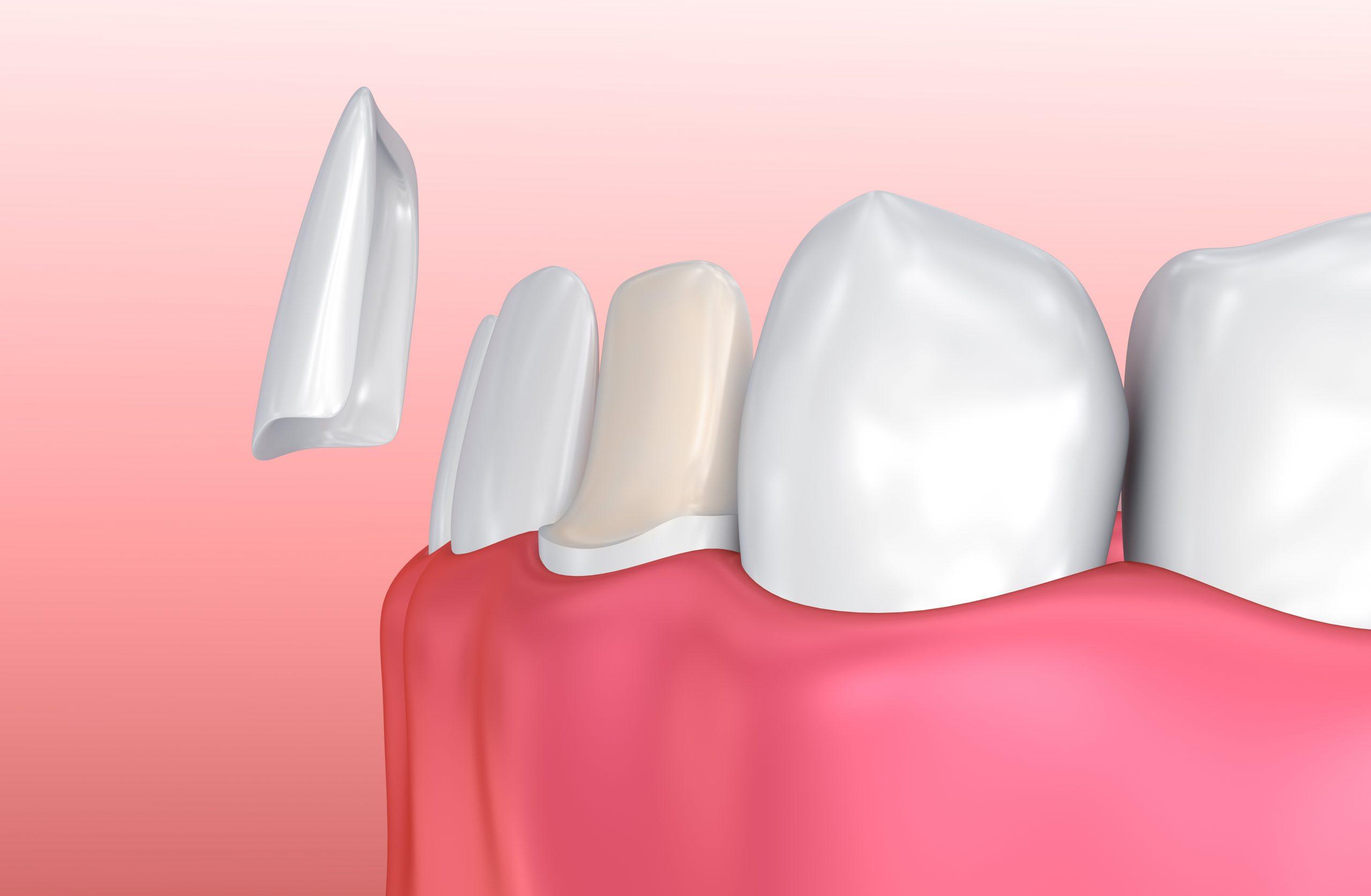 faceta de dente