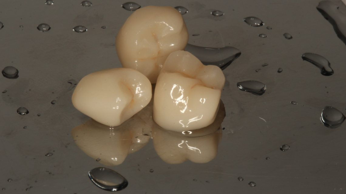 Prótese dentária computadorizada