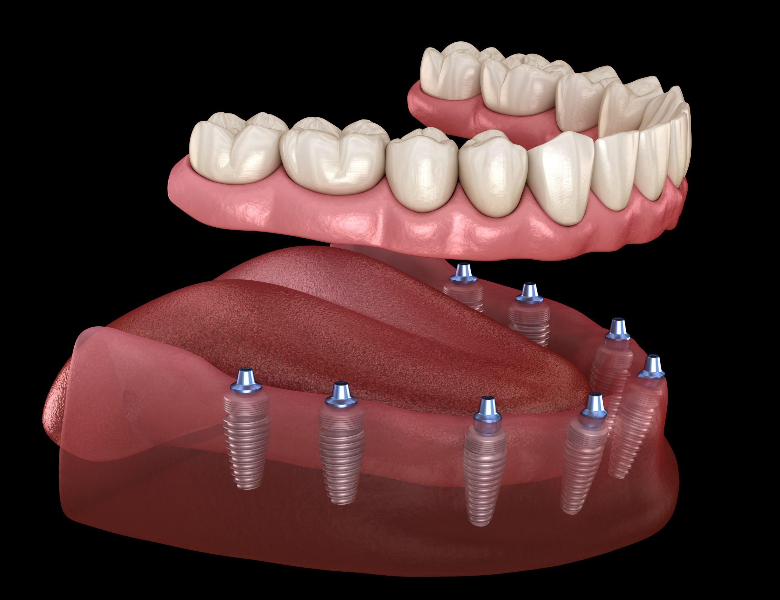 protese total dentaria computadorizada