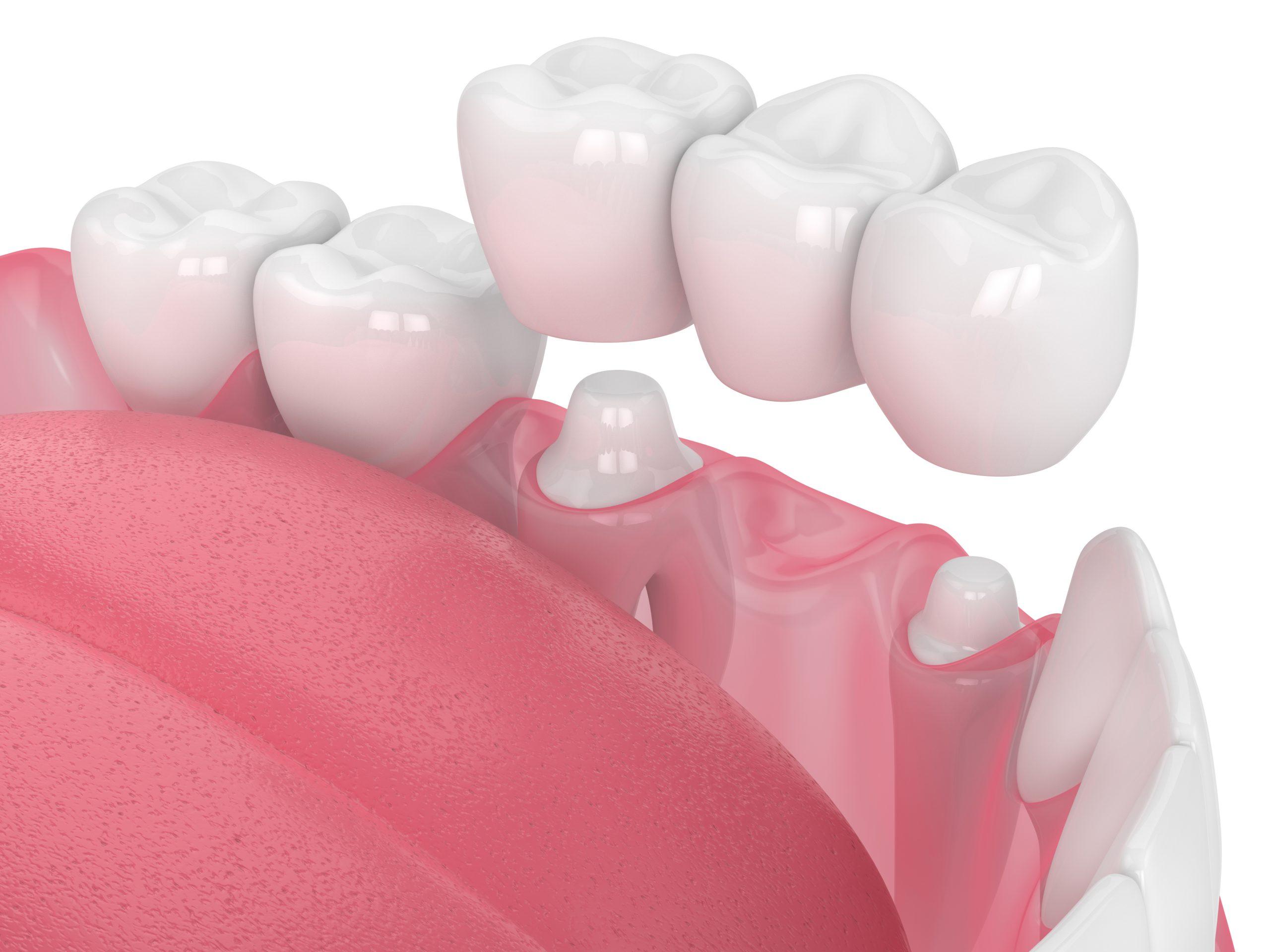 Protese dentaria computadorizada